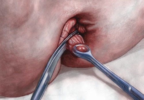 haemorrhoidectomy